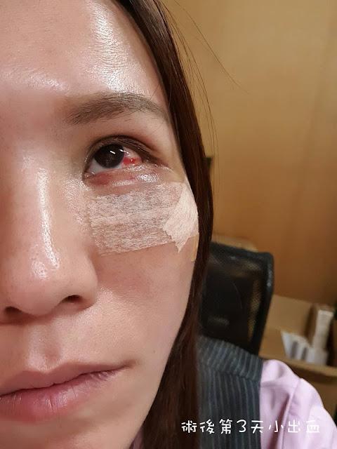 眼袋手術後遺症第3天