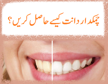 natural tips for teeth whitening in urdu