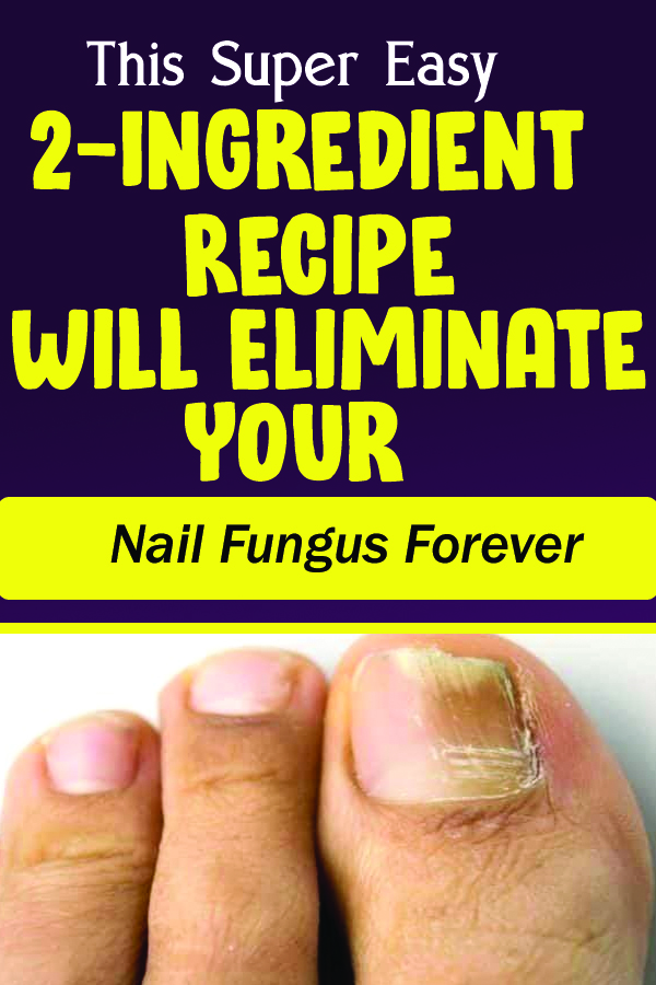 This Super Easy 2-Ingredient Recipe Will Eliminate Your Nail Fungus Forever
