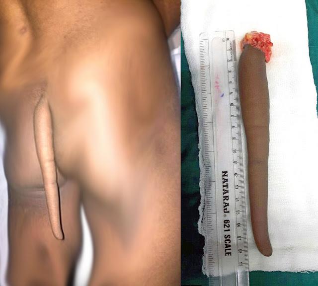 18 centymetrowy ogon usunięty 18-letniemu Hindusowi