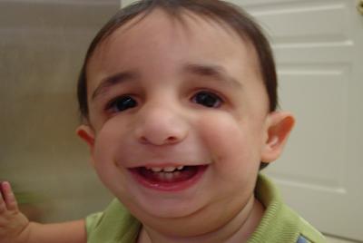 mandibulo facial dysostosis