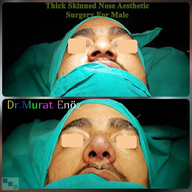 Thick Skinned Nose Aesthetic Surgery For Male Istanbul Turkey Rhinoplasty Men