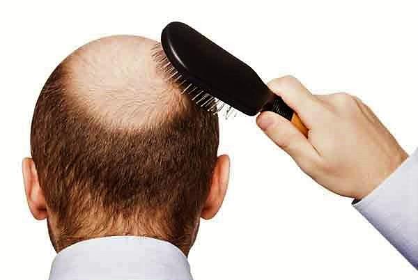 7 Cara Alami Mempercepat Pertumbuhan Rambut