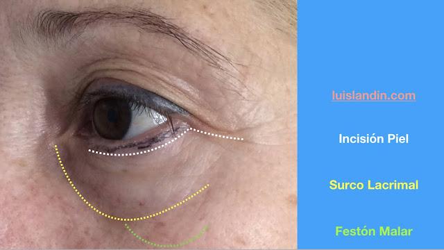 La imagen muestra la localización del surco de la lágrima. Por debajo de él se pueden producir festones malares. Por debajo de las pestañas se puede realizar una incisión de blefaroplastia.
