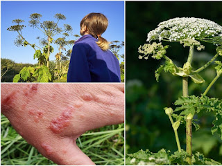 3 images: One shows a girl looking up at a toweing stalk of Giant Hogweed, the next shows the flower and the third shows a hand with blisters from the plant.