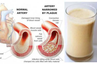 Stabilize Your Blood Glucose and Cholesterol by Drinking THIS