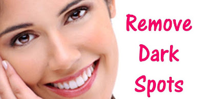 Remedies for Dark Spots On Skin