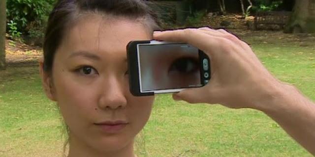 تجربة جديدة هاتفك يستطيع الكشف عن سرطان الجلد