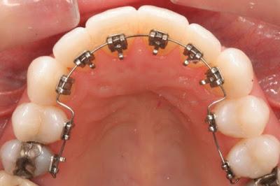 Chi phí niềng răng của mắc cài mặt trong cao nhất