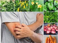 Membuat Ramuan Herbal untuk Hilangkan Gatal-gatal dari Prof. H.M. Hembing Wijayakusuma