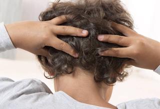 Punca Kulit Rambut Gatal