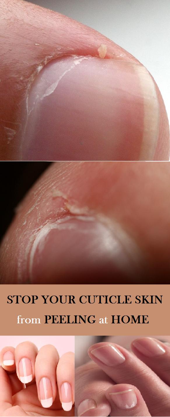 How To Stop Peeling Fingertips