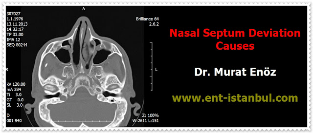 Nasal septum deviation definition - Nasal septum deviation causes - Symptoms of deviated septum - Diagnosis of septum deviation with turbinate hypertrophy - Treatment of nasal septum deviation - Septoplasty in Istanbul - Septoplasty in Turkey