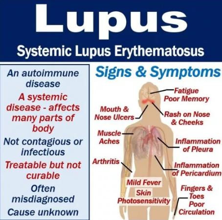 The Diagnosis and Treatment of Systemic Lupus Erythematosus