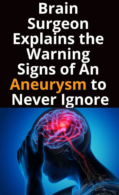 Brain Surgeon Explains The Warning Signs Of An Aneurysm To Never Ignore