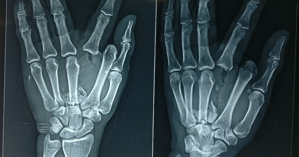 OPEN DISLOCATION MCP JOINT , FRACTURE MULTIPLE METACARPAL - OUTCOME ...