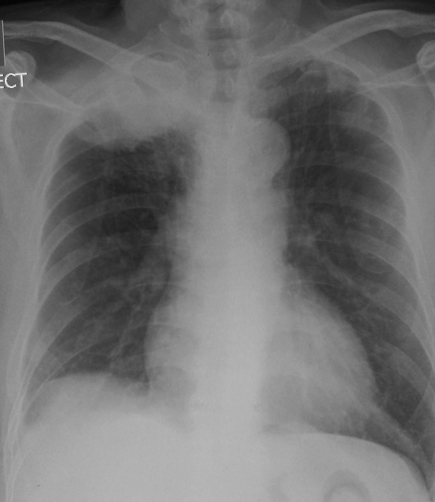 Learning Chest Radiology: Case 184 - Pancoast tumour