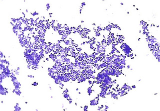 Vinagre para câncer de colo de útero
