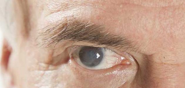 اعراض المياه البيضاء على العين والاسباب والعلاج وكيفية الوقاية