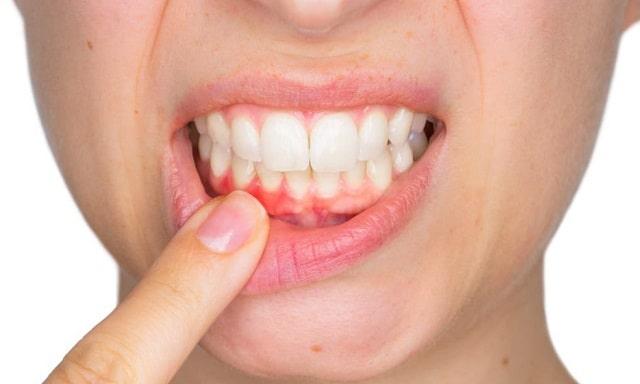 causes gum disease prevention periodontal diseases