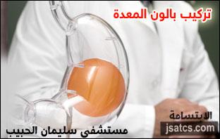 سعر بالون المعدة في سليمان الحبيب