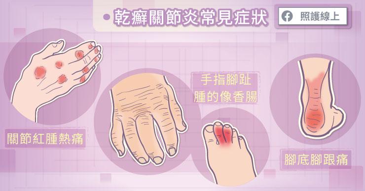 乾癬性關節常見症狀