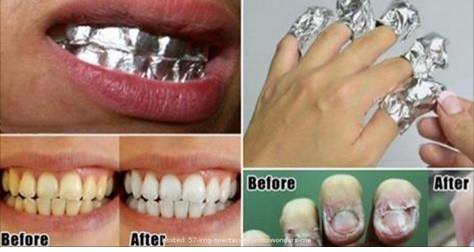 Using Aluminum Foil On Your Body
