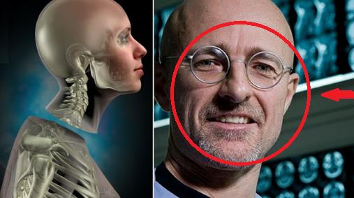 GILA! Dokter Ini Lakukan Transpalasi Kepala Jadi Kenyataan
