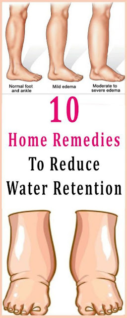 10 Home Remedies To Reduce Water Retention