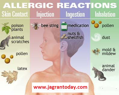 Why and How People Get Allergic