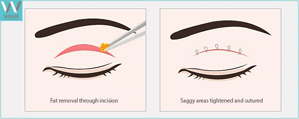 upper blepharoplasty surgical process