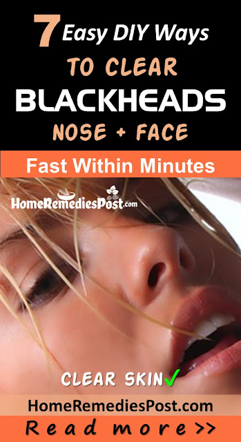 How To Get Rid Of Blackheads, Home Remedies For Blackheads, How To Remove Blackheads, Blackheads Treatment, How To Treat Blackheads, How to Get Rid of Blackheads Overnight, How To Get Rid Of Blackheads Fast, Blackheads Home Remedy, How To Cure Blackheads, How To Take Blackheads Out, Blackheads Remedies, Treatment For Blackheads,