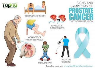 prostate cancer medical treatment