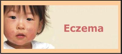 Penyakit Eczema : Punca dan Kaedah Rawatannya
