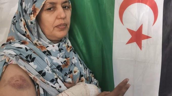 Las mujeres saharauis en los TT.OO saharauis son víctimas de violencia por parte de las fuerzas marroquíes por razón de su pensamiento político.