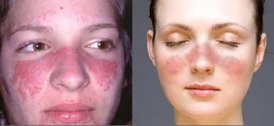5 Hal yang Menyebabkan Orang Beresiko Terserang Penyakit Lupus