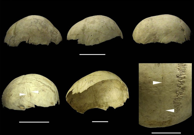 Human skull caps were produced systematically from end of Palaeolithic to Bronze Age in Europe