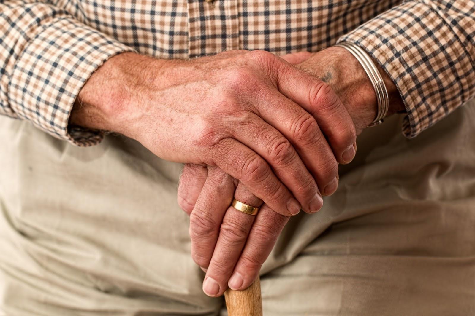 Cannabidiol (CBD) Hemp Oil for Arthritis Pain