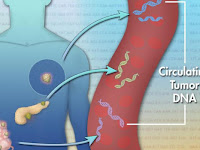 Metastatic Liver Cancer Prognosis Life Expectancy