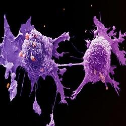 Por que alguns tratamentos contra o câncer param de funcionar depois de tanto tempo?