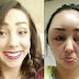 Woman experiences horrific allergic reaction from HAIR DYE - showing deformation in her face