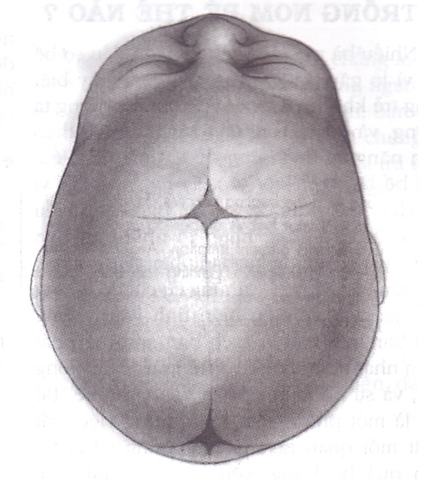 Các thóp trên đỉnh đầu ở trẻ sơ sinh