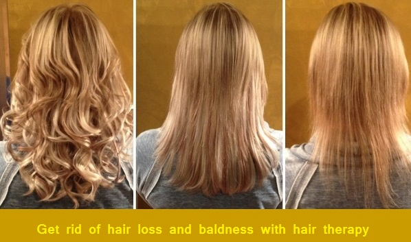 Get rid of hair loss and baldness with hair therapy