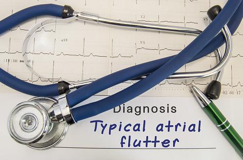Penyakit Atrial Flutter Pada Manusia Pengertian Atrial Flutter Atrial flutter atau fibrilasi atrial terjadi ketika jantung berdetak dengan cepat karena terlalu banyak impuls listrik yang tidak biasa. Atrial bergetar ketika mereka mencoba untuk bersentuhan, tetapi kontraksi terjadi terlalu cepat. Pada kondisi ini, atrial dapat bergetar hingga mencapai 300 kali per menit, di mana normalnya hanya bergetar 60 sampai 100.  Tanda dan Gejala Atrial Flutter Gejala utama dari atrial fletter adalah palpitasi (perasaan bahwa jantung berdebar atau berpacu), pusing, ringan, dan merasa lesu. Gejala lain mungkin terjadi yaitu angina atau gagal jantung. Angina adalah nyeri jantung yang disebabkan oleh suplai darah cukup rendah. Masalah pernapasan, nyeri dada, dan pingsan bisa terjadi bersamaan dengan gagal jantung. Mungkin masih ada tanda dan gejala yang belum disebutkan, jika ingin mengetahui terhadap suatu keluhan silahkan konsultasikan ke dokter.  Penyebab Atrial Flutter Ada banyak faktor risiko untuk atrial flutter, yang diantaranya : Penggunaan alkohol (terutama minum terlalu banyak dalam waktu singkat) Penyakit arteri koroner Serangan jantung atau operasi bypass jantung Gagal jantung atau jantung yang membesar Penyakit katup jantung (paling sering katup mitral) Hipertensi Disebabkan oleh obat Kelenjar tiroid terlalu aktif (hipertiroidisme) Perikarditis Sakit sindrom sinus  Faktor Risiko Atrial Flutter Faktor-faktor tertentu yang meningkatkan risiko mengalami atrial flutter, di antaranya : Usia Semakin tua usia, semakin besar risiko mengalami atrial flutter Penyakit Jantung Siapapun dengan penyakit jantung-seperti masalah katup jantung, penyakit jantung bawaan, gagal jantung kongestif, penyakit arteri koroner, atau riwayat serangan jantung dan operasi jantung-memiliki peningkatan risiko atrial fletter Tekanan Darah Tinggi Memiliki tekanan darah tinggi, terutama jika tidak dirawat dengan perubahan gaya hidup atau penggunaan obat, dapat meningkatkan risiko atriall flutter Minum 