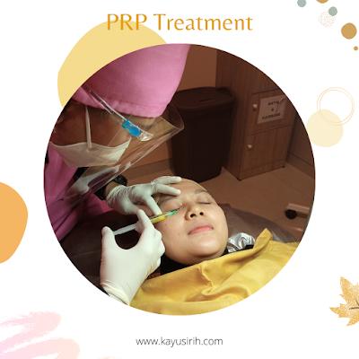 Treatment dengan Plasma Darah di Ella Skincare