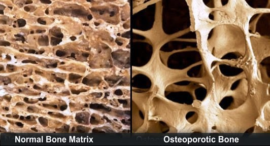 Osteoporosis Features And Management