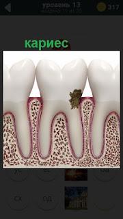 схематическое изображение кариеса зубов у человека