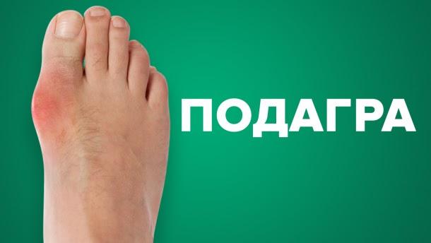 Лечение подагры в Одессе и Удаление косточки на ноге Одесса