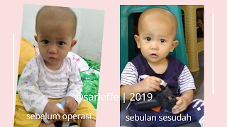 Foto sebelum dan sesudah khitan