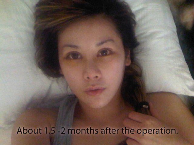 Wanita Ini Melakukan 10 Prosedur Operasi Plastik Agar Wajahnya Terlihat Cantik seperti Anime!